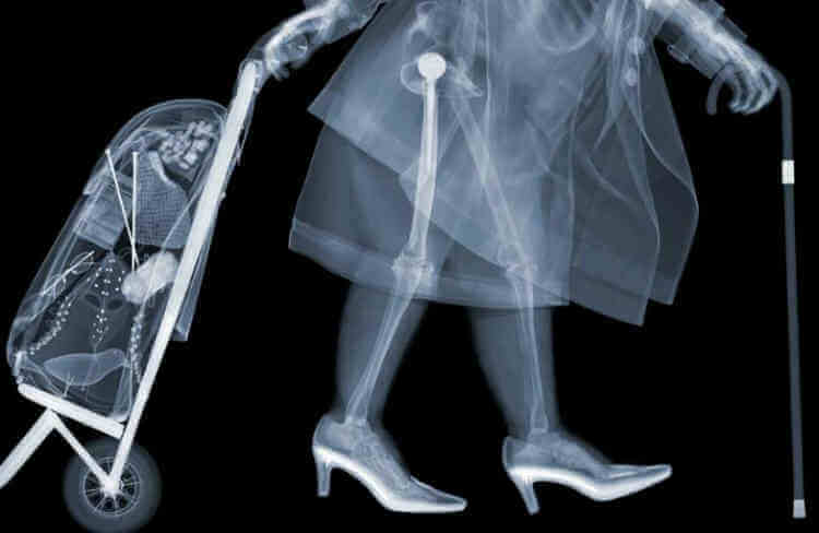 röntgenlátás szuperképessége